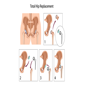 Prominent Signs Of Needing Hip Replacement Surgery: